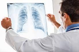 ejemplos enfermedades profesionales